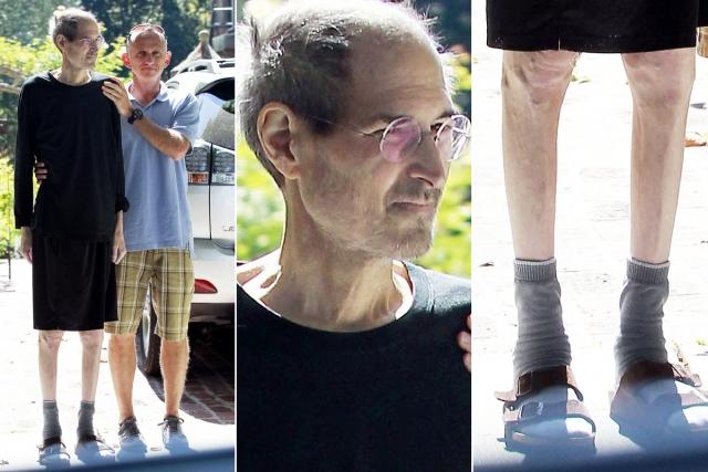 Джобс в течение девяти месяцев отказывался пройти операцию, так как не хотел, чтобы его тело вскрывали, о чем позже сожалел. Он пытался препятствовать болезни средствами нетрадиционной медицины. После 3-летней борьбы с недугом Стив скончался.