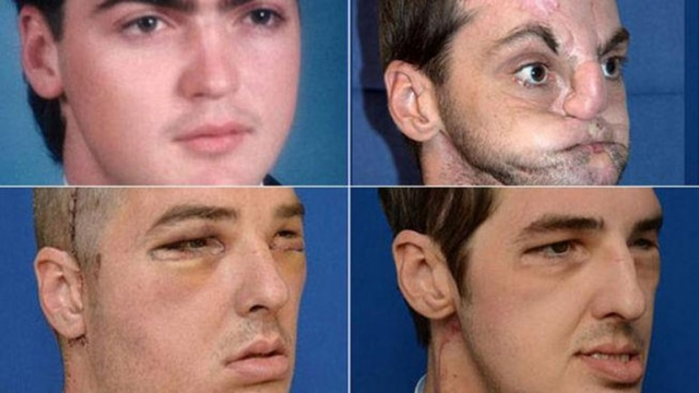 В результате 36-часовой пластической операции медикам американского Мэрилендского университета в Колледж-Парке пришлось делать трансплантацию не только кожного покрова, лицевых мышц и хрящей, но и зубов, и даже языка.