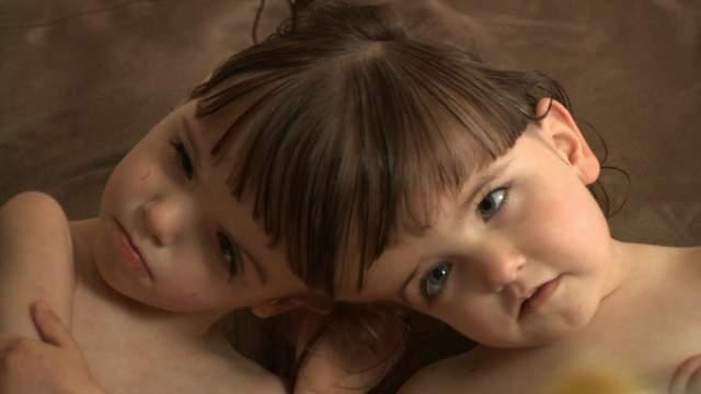"""Проведенные обследования показали, что у сестер смешанная нервная система и, несмотря на разные пары глаз, общее зрение. Это значит, что одна из девочек воспринимает информацию, которую не в состоянии видеть, """"пользуясь"""" при этом глазами другой. Это говорило о том, что и мозг сестёр Хоган тоже взаимосвязан."""