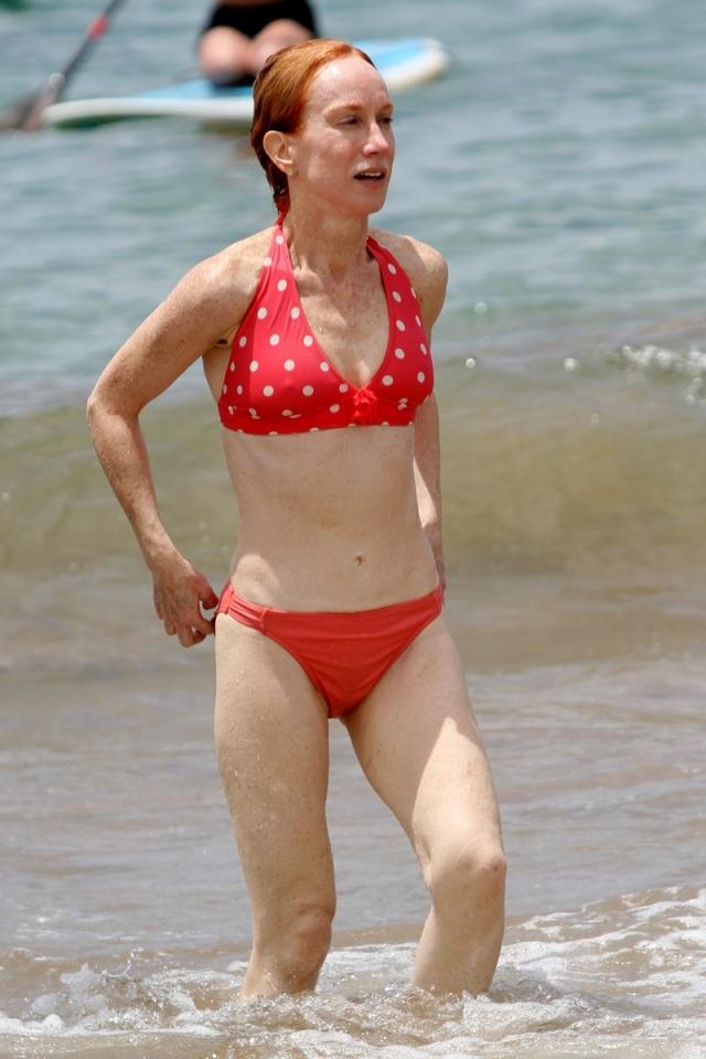 Кэти Гриффин. Один из самых страшных результатов пластической хирургии коснулся актрису, которая чуть не умерла во время липосакции.