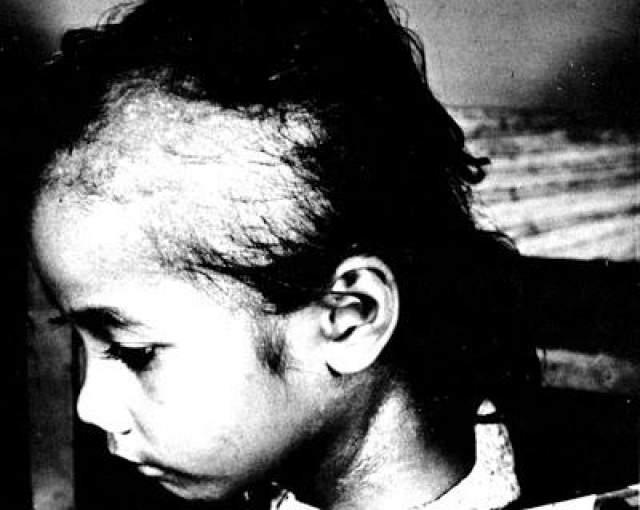 """Министерство энергетики США прокомментировало эксперименты: """"... Исследования по воздействию радиации на людей можно было бы проводить параллельно с лечением пострадавших от радиации""""."""