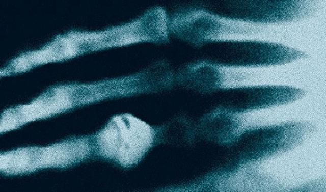 Собственно, с чего все и началось. В 1895 году, 8 ноября, Вильгельм Конрад Рентген открыл собственное излучение. Вскоре в газетах появился и первый рентгеновский снимок, на котором запечатлена рука его жены – Берты Рентген.Благодаря ему выяснилось, что Берта носит кольцо.