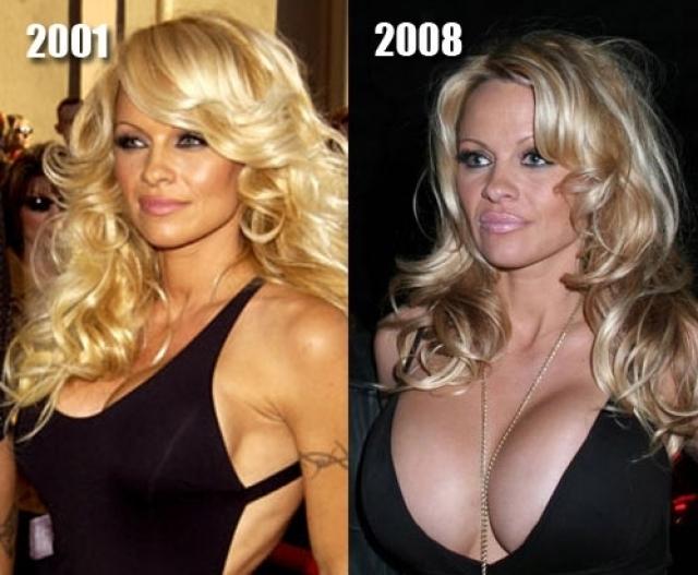 Первую операцию по увеличению груди Памела сделала еще будучи подростком, затем все увеличивая и увеличивая размер имплантов.