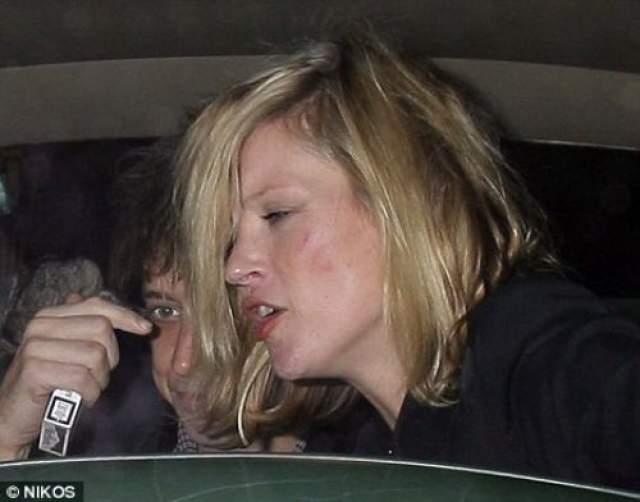 В 2014 году модель Кейт Мосс перебрала с алкоголем. Во время посадки в Бодруме на рейс в Лондон оказалось, что у звезды нет билета.