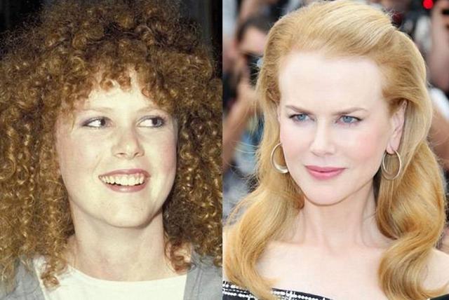 Николь Кидман. На фото очевидно, что в последнее время ее лицо заметно изменилось, хотя сама звезда какие-либо вмешательства хирургов отрицает.