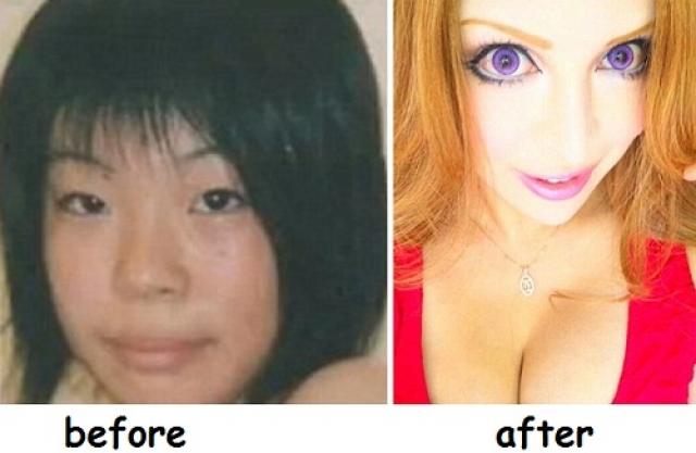 Она потратила больше 100 тысяч долларов и перенесла 30 процедур чтобы получить такую кукольную внешность.