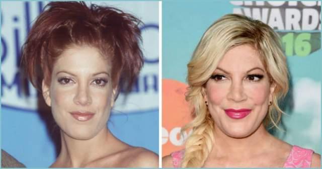 """Тори Спеллинг, 45 лет. Американская актриса, сценарист и писатель, известная по роли Донны Мартин в """"Беверли Хиллз 90210"""", сделала ринопластику в 16 лет. Но тогда произошла какая-то ошибка в ходе операции, и на крыльях носа остались рубцы."""