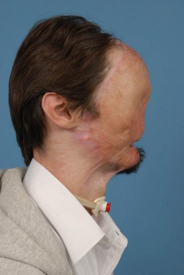 Даллас остался слепым, без губ, носа и бровей. Врачи сказали его семье, что Винс, вероятно, будет парализован от шеи и ниже, не будет говорить, а также не сможет производить достаточное количество слюны, чтобы употреблять твердую пищу.