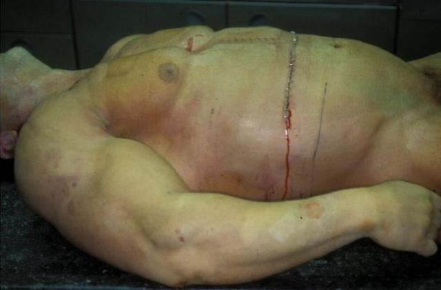 """Ночью Андреас умер от """"множественного отказа органов"""". Обнаружилось, что его кровь была вязкой из-за тотального обезвоживания организма, а печень почти что разрушена. Сердце не выдержало такой нагрузки."""