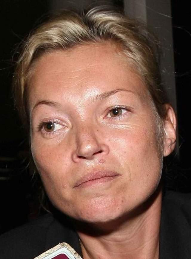 В прессе несколько раз всплывали скандалы, связанные с наркотиками и алкоголем, которые, казалось, должны были положить конец ее успешной карьере. Однако Кейт сумела остаться на вершине моды по сей день. Фото 2008 года.