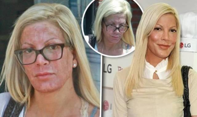 Тори Спеллинг угодила под прицел папарацци прямо после болезненных косметических процедур.