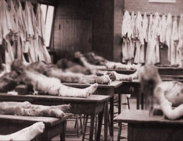С тел он снимал плоть и превращал их в скелеты, которые затем продавал в медицинские школы. Некоторых жертв Холмс кремировал или помещал в яму с известью до полного разложения.