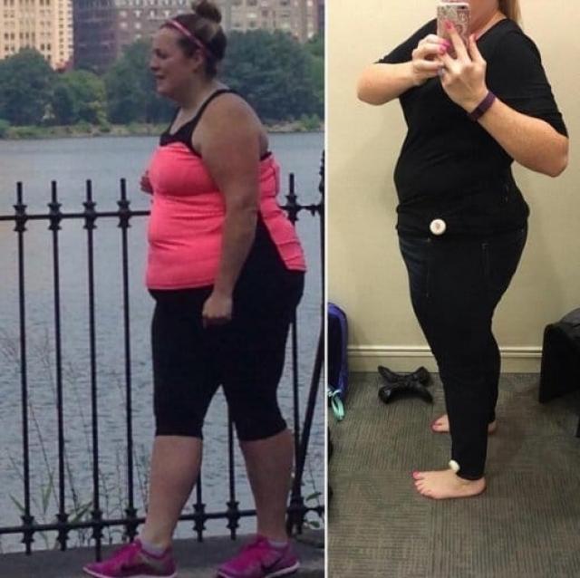 Алисса почти всю свою жизнь страдала от избыточного веса.