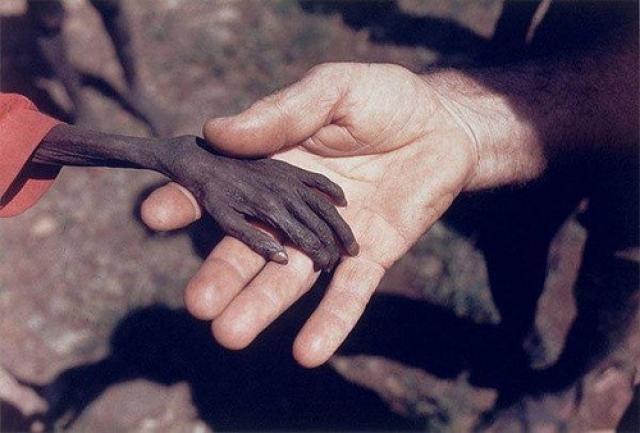 Голодный мальчик и миссионер. Уганда, 1980 год.