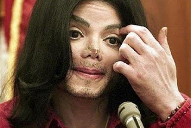 Поклонников Майкла Джексона могло мало что удивить во внешнем виде звезды, но фото с поврежденным носом произвело фурор даже среди них.