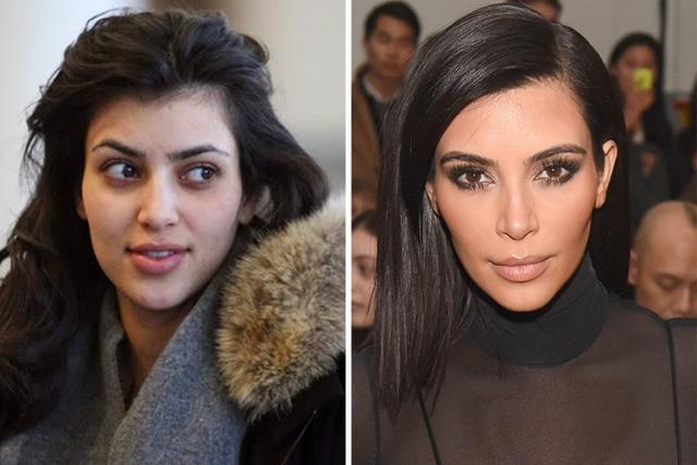 """Ким Кардашьян. Ринопластика и увеличение груди, а также хирургические манипуляции с """"пятой точкой"""" сделали из Ким мега-популярную звезду."""