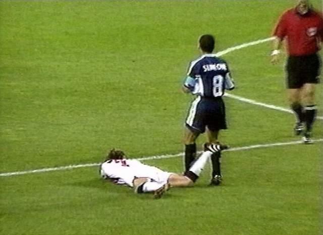 Капитан аргентинской команды Диего Симеоне, по вине которого упал будущий кумир молодежи, получил легкий пинок от все еще лежащего футболиста бутсой по икре. Поняв, что арбитр смотрит в его сторону, Симеоне повалился на землю, закрыв лицо руками.