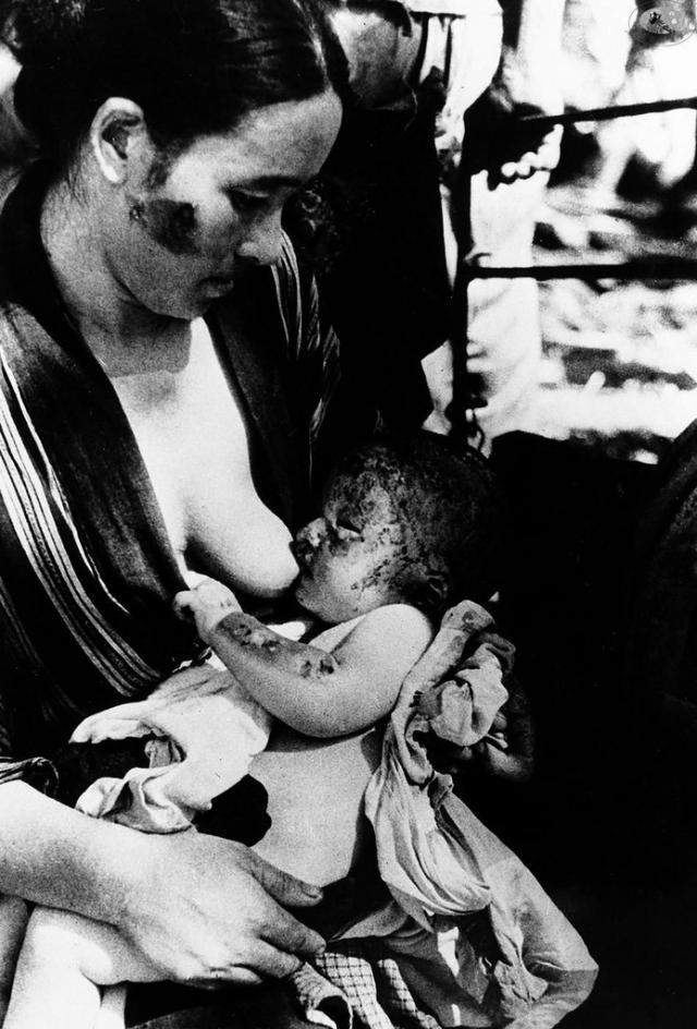 Пострадавшая во время атомной бомбардировки женщина кормит своего ребенка.