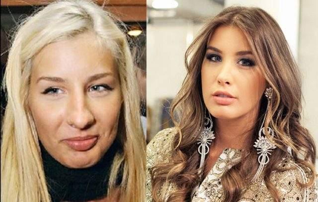 Кети Топурия, 32 года. Дочь грузинского криминального авторитета пластику носа делала дважды.