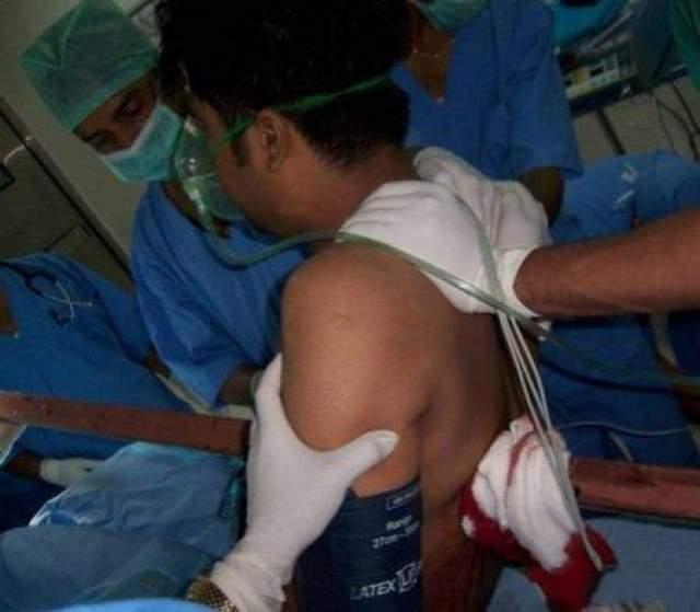 В течение 6-часовой операции специалисты травматологического центра AllMS боролись за его жизнь. Его жизненно важные органы были серьезно повреждены. Железный стержень прошел сквозь легкие, буквально в нескольких миллиметрах от сердца.