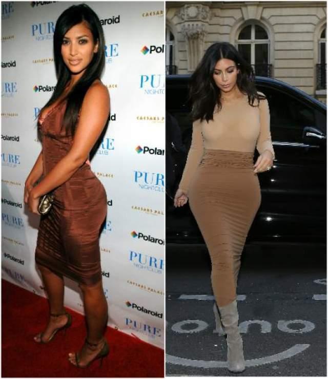 Ким Кардашьян Узнаете ли вы эту девушку слева? Да-да, это действительно Ким Кардашьян, только пару-тройку лет назад. Даже хирургии не могут дать однозначного ответа по поводу имплантов в ее груди, но в операции по изменению формы носа, липосакции и увеличению ягодиц они уверены на 100 %.