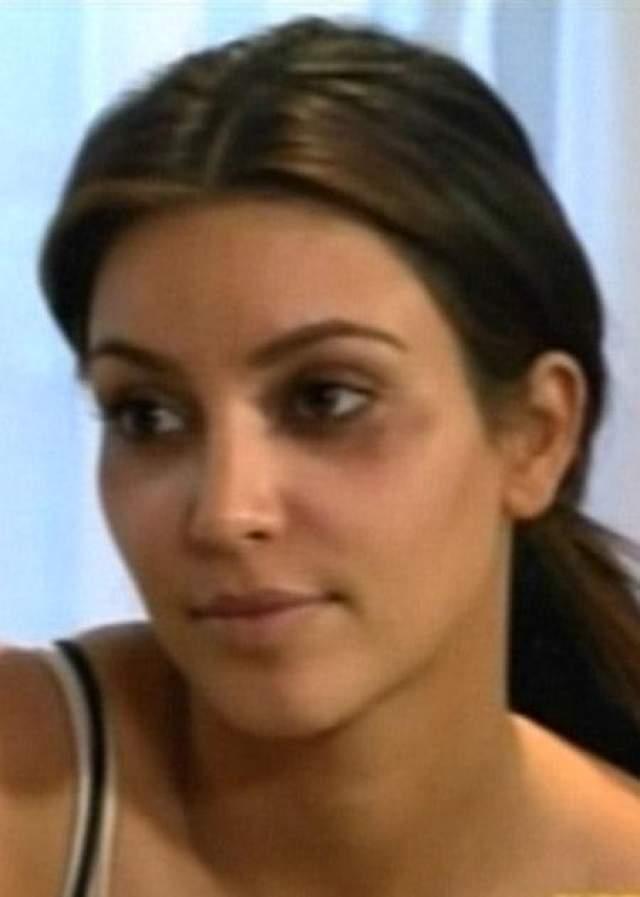 После процедуры в клинике Ким долго охала и говорила, что ботокс- это полная гадость и ей в ее возрасте он совсем не нужен. А потом выложила снимки с синяками от уколов на лице в своем твиттере.