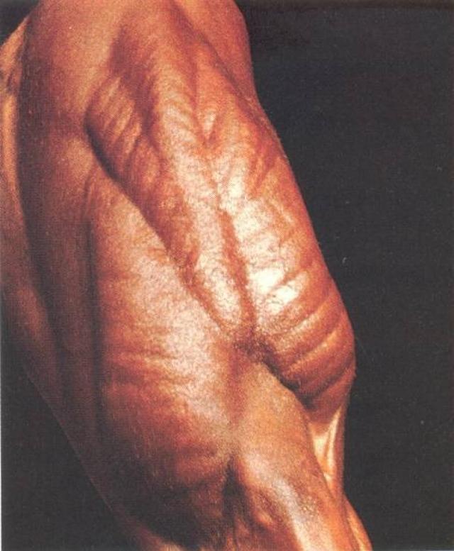 """Андреас получает прозвище """"человек без кожи"""": из-за минимального количества жира создается впечатление, что зритель смотрит на голые мышцы."""
