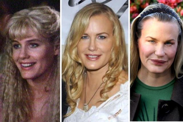 Дэрил Ханна. Изменения лица актрисы очевидны, но вот насчет того, что удачны, можно поспорить.