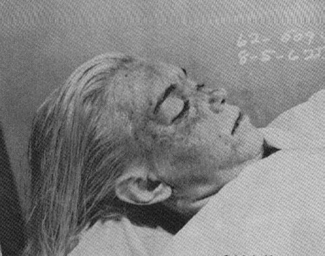 Подозрительно выглядело положение трупа. Монро лежала вниз лицом, ноги были сдвинуты вместе и вытянуты, руки также спокойно лежали по бокам. При передозировке снотворного обычно наблюдается другая картина — по телу проходят сильные конвульсии. Кроме того, передозировка должна была вызвать сильную рвоту — этого также не произошло. В желудке актрисы не были обнаружены остатки капсул от лекарств.