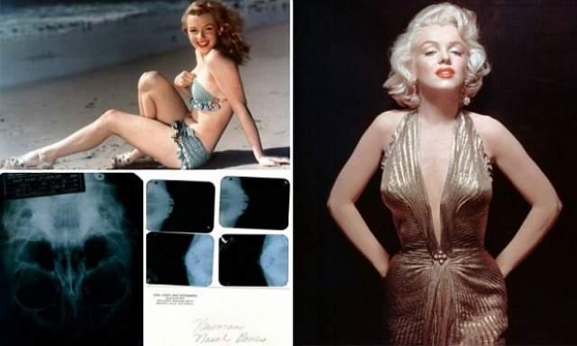 Рентгеновские снимки Мэрилин Монро. Проданы за 45 тыс. долларов на аукционе в Лас-Вегасе.