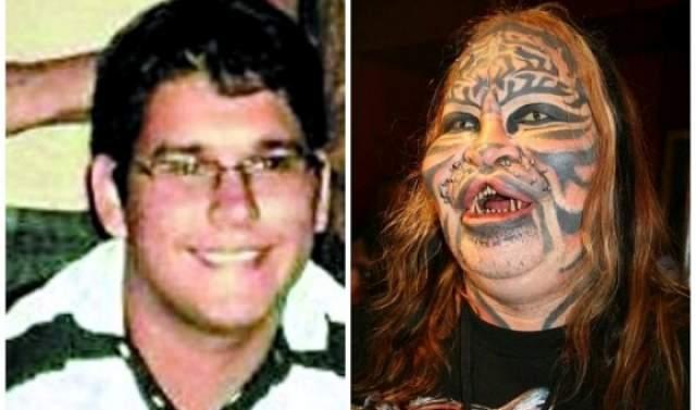 Помимо множества подкожных имплантатов для изменения формы лица, Деннис обзавелся кошачьими зубами и даже кошачьими усами.