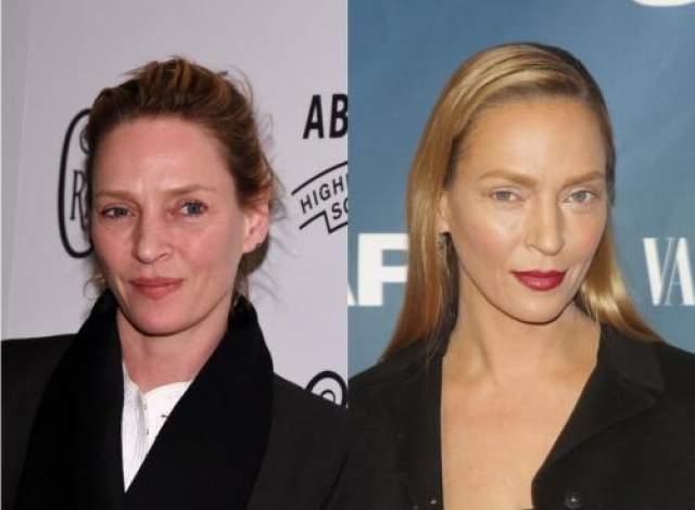 Сложно поверить, но две эти фотографии сделаны с разницей всего в пару недель. На тот момент 44-летняя звезда явно вышла в свет раньше, чем ей это позволил косметолог. Глядя на снимки, несложно догадаться, что актриса перенесла операцию по удалению мешков под глазами, подтяжку кожи век и многочленные инфекции, которые помогли ей разгладить возрастные морщины.