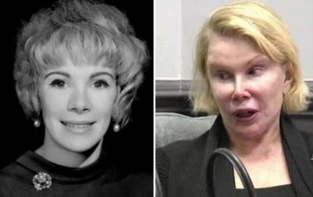 Джоан Риверс Ботокс, подтяжки, инфекции филлеров - актриса и телеведущая Джоан Риверс, по своим собственным словам, сделала в общей сложности 739 пластических операций и подобных им манипуляций со своей внешностью.