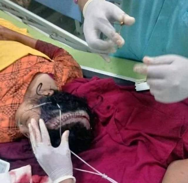 Во время фотографирования ее голову задел проезжающий мимо поезд, в результате чего она получила серьезную травму черепа.