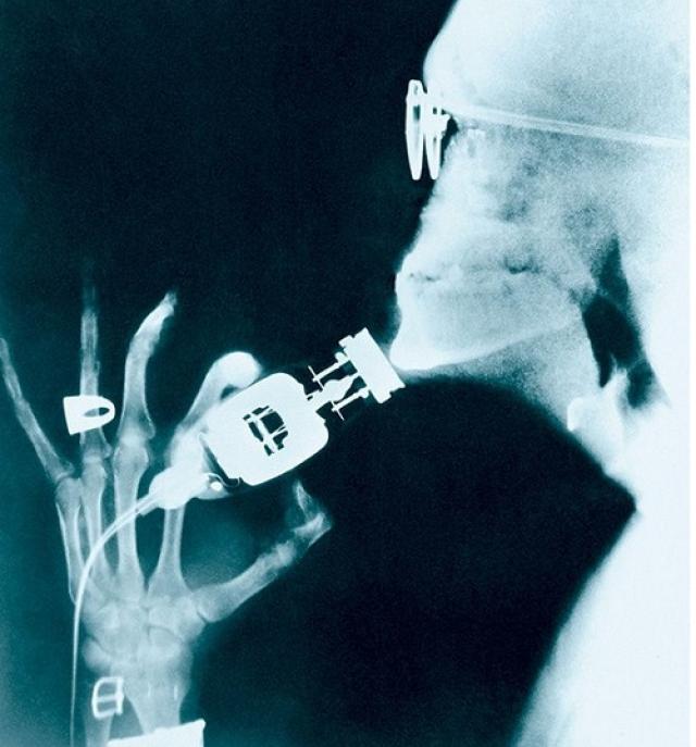 Снимок сделан в 1941 году, 19 марта, в Блумфилде (штат Нью-Джерси, США). Мужчина просто решил побриться, зато на рентгене это выглядит очень специфически. Словно бритвой проводят по голой кости.