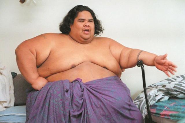 Причиной заболевания было именно ожирение - он весил 343 килограмма.