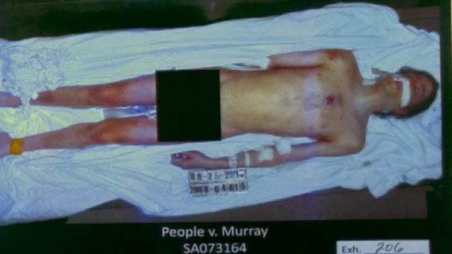 На обвинения в том, что доктор ввел певцу смертельную дозу пропофола, адвокаты Мюррея утверждали, что Джексон самостоятельно ввел себе дополнительную дозу препарата.