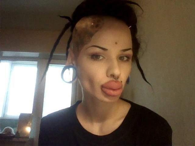 Как утверждает девушка, будучи подростком, она была жертвой школьной травли, и решила, что причиной этого была ее внешность.