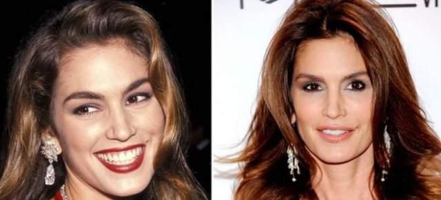 Синди Кроуфорд, 52 года. Американка, чей пик популярности пришелся на начало 90-х, до сих пор сохраняет стройность и красоту лица.
