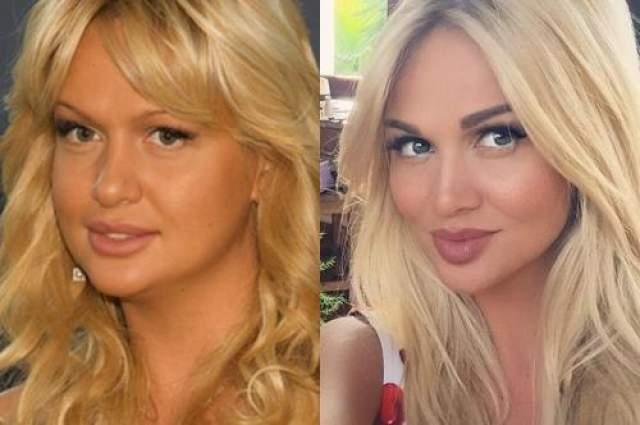Но вот лицо в последнее время стало таким кукольным, что некоторые фото больше похожи на карикатуру. Виктория в 2010 (слева) и сейчас.