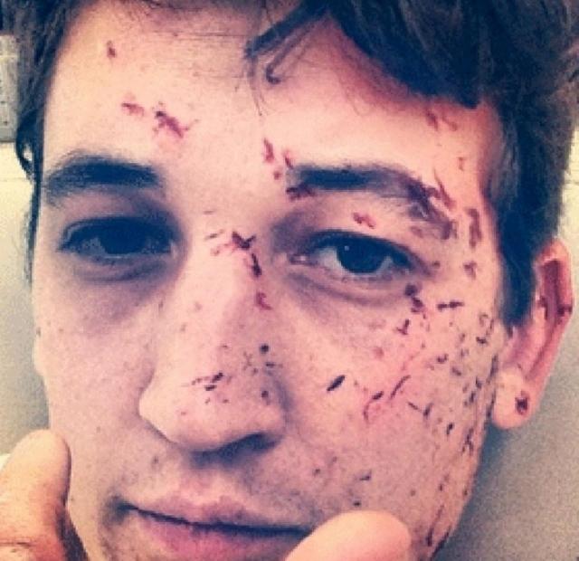 Майлз Теллер. 20-летний актер пережил автомобильную аварию. Он находился в машине с друзьями, когда водитель неожиданно потерял управление. Машина пересекла 3 ряда и перевернулась 8 раз, прежде чем остановиться.