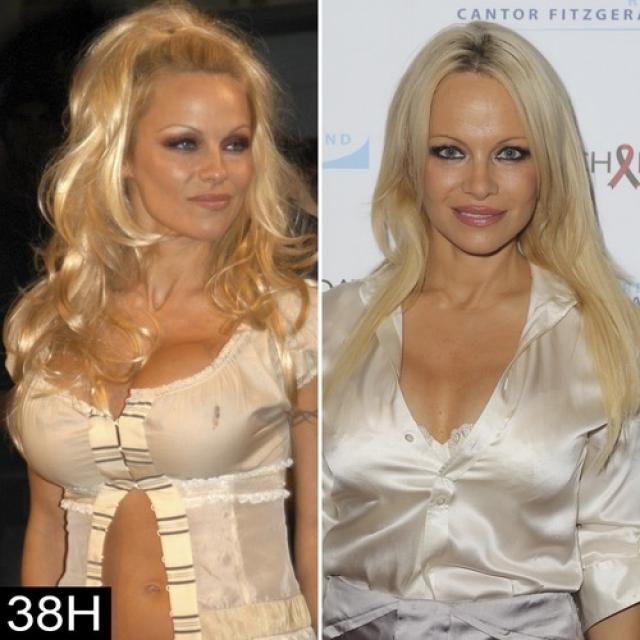 В 1999 году, однако, решила, что устала от слишком большой груди, заменив свои импланты на более скромные по размерам. Позднее актриса заявляла, что попыталась вернуться к своим естественным формам.