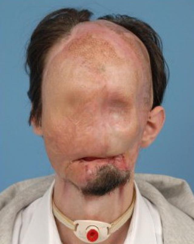 """Как бы это ни было ужасно, он превратился в настоящего """"человека без лица"""" с оголенными лицевыми костями. С целью защитить организм Далласа от последующих разрушений, врачи ввели его в искусственную кому на три месяца."""