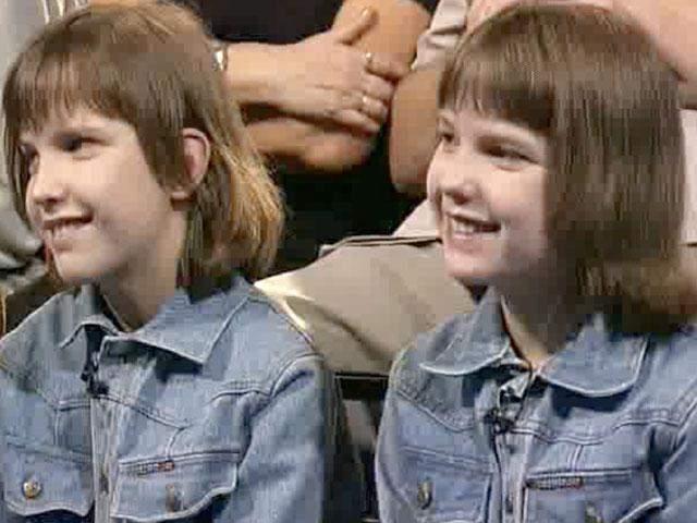 Осложняло процедуру то, что у девочек была одна печень на двоих. Но хирург Лев Новокрещенов сумел справиться с этой задачей.