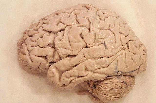 Следы пропажи всплыли спустя годы, когда внучка Муссолини объявила, что кто-то выставил мозг и образец крови деда на аукцион e-Bay за 15 тысяч долларов. Торговый дом немедленно убрал этот лот из листинга.