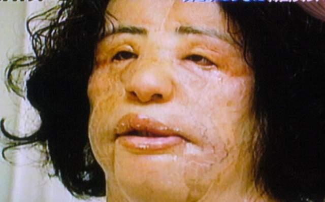 Когда лицо красивой девушки стало похоже на нечто несуразное, врачи единодушно стали отказывать в операции Ханг.