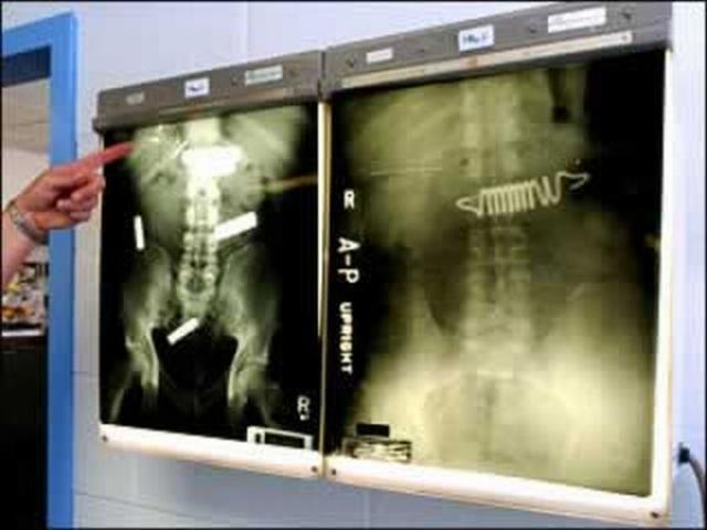 Снимок заключенного, который проглотил части своей кровати и несколько металлических пружин, для того чтобы покинуть камеру и лечь в больницу.