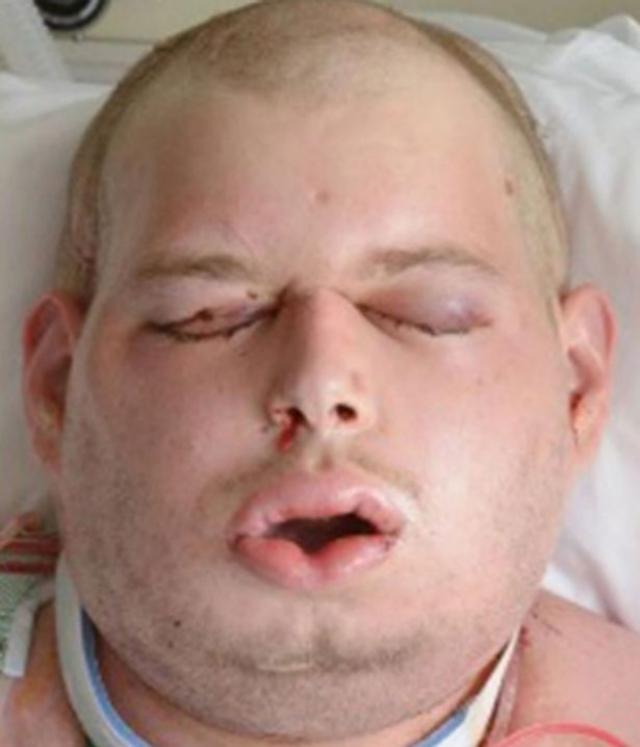 """В ходе операции хирургам пришлось изменить форму черепа пациента, чтобы его новое лицо не """"свисало"""": были восстановлены уши, веки, брови, шея пациента."""