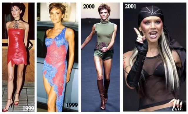 Виктория Бекхэм. На заре карьеры девушку нельзя было назвать образцом стиля: она предпочитала обтягивающие лосины, короткие юбки и яркий макияж.
