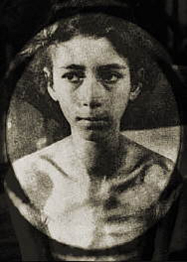 Клоберг отчаянно хотел найти дешевый и легкий способ женской стерилизации. Зачастую он даже использовал жидкую кислоту, вводя ее в матку.